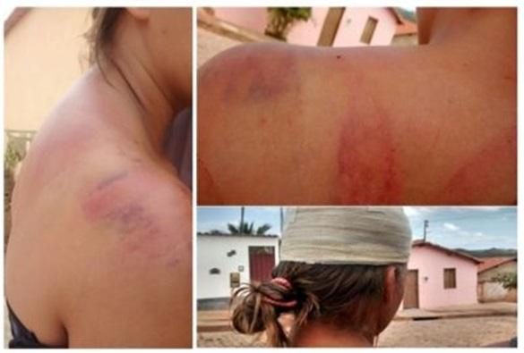 Jovem que foi espancada por casal em Rio de Contas, terá que fazer tomografia de crânio