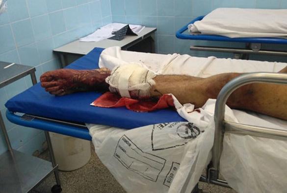 Brumadense é alvejado na perna ao tentar fugir da cadeia de Guanambi