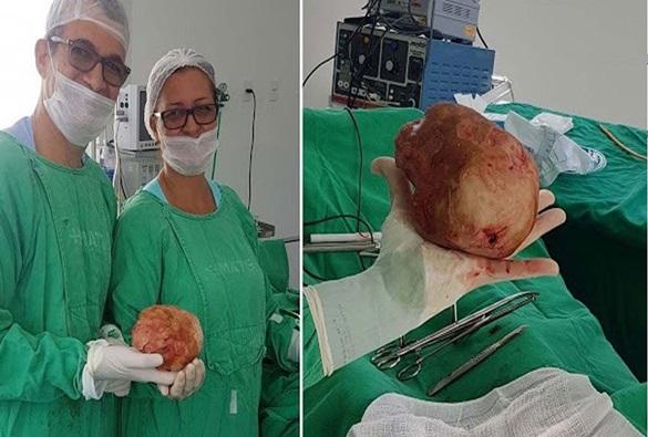Paciente baiano retira pedra de mais de um quilo da bexiga